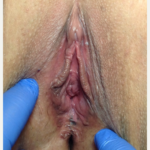 Vaginal Rejuvenation/ Vaginoplasty