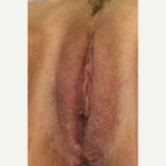 Labia Majora Reduction