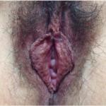 Hoodoplasty/Prepuce Reduction