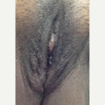 Vaginal Rejuvenation/ Vaginoplasty