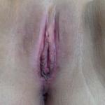 Labia Majora Repair