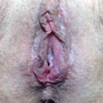 Labia Majora Rejuvenation